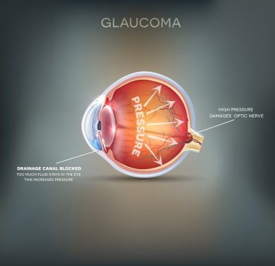 Glaucoma causes